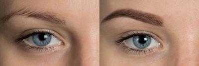 Comment se déroule la cicatrisation d'un maquillage semi-permanent ?