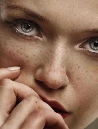 Le Maquillage Permanent du grain de beauté ou Éphélides